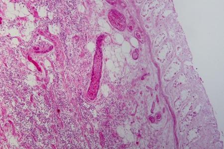 Ischemic_colitis,_HE_1